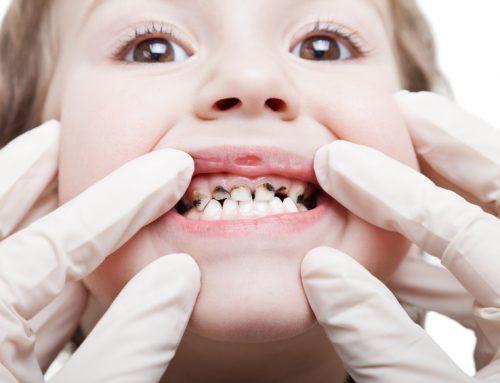 پوسیـدگی دندانی